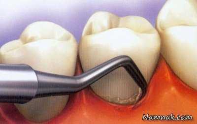برای جلوگیری از لق شدن دندان چه کنیم؟ 1