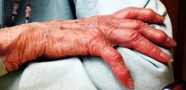 عامل درد بیماران مبتلا به آرتروز شناسایی شد 1