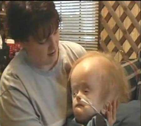 کودکی بدون مغز به دنیا آمد و 12 سال زنده ماند!+عکس 1