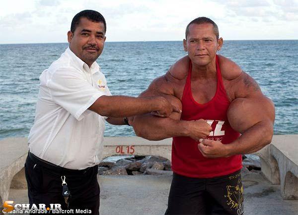 [تصویر:  fake-biceps6.jpg]